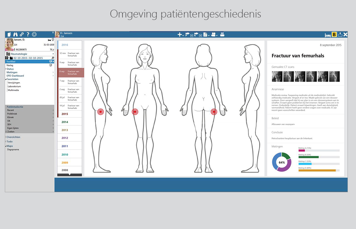 chipsoft ux interaction user experience interface digital software app grafisch ontwerp hix patientengeschiedenis